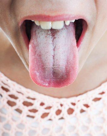 Photo pour Jeune personne de sexe féminin qui dépassent la plaque blanche sur la langue - image libre de droit