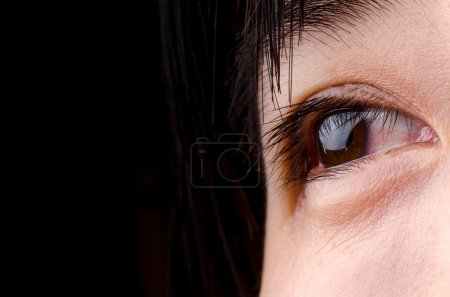 Photo for Eye with blood streak of asian woman - Royalty Free Image