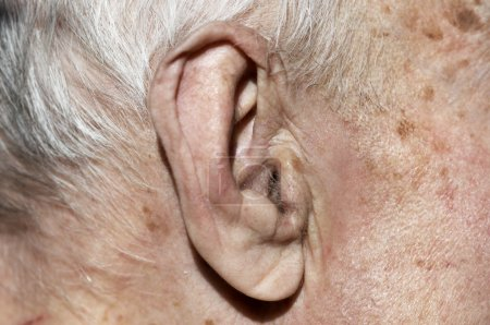 Senior ear