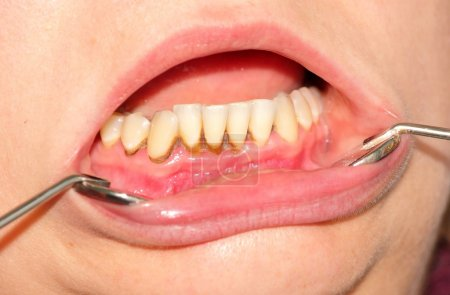 Photo pour Tartre, plaque sur les dents frontales et gingivite - image libre de droit