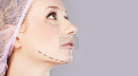 Cosmetic botox injection, in the female face