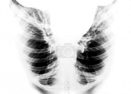 Detail of an x-ray of lungs
