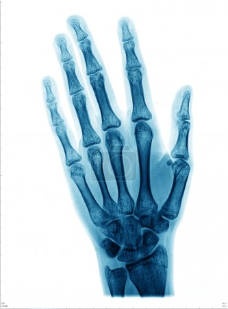 X-ray picture of hand