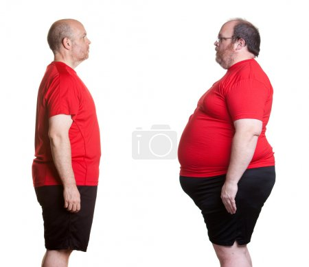 Photo for Before and after pictures of man with 16 months nutrition and exercise changes and losing 180 lbs. - Royalty Free Image