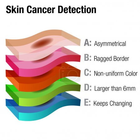 Illustration for An image of a skin cancer detection chart. - Royalty Free Image
