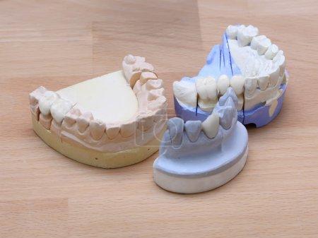 Photo pour Modèles dentaires montrant différents types de traitements - image libre de droit