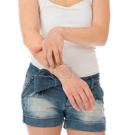 Young woman allergy scratching her arm