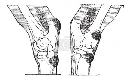 Defects of the Hock or Gambrel of a Horse, vintage engraving