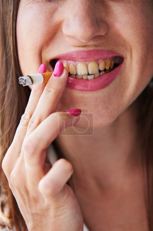 Photo for Smoking woman have the bad yellow teeth - Royalty Free Image