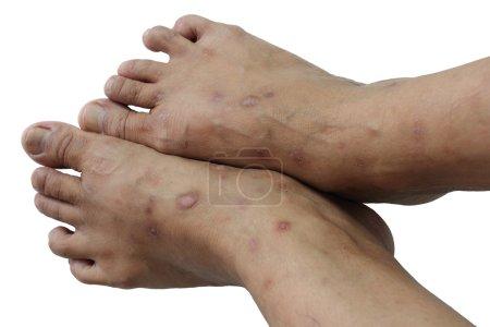 Photo pour Maladie non contagieuse qui touche principalement la peau - image libre de droit