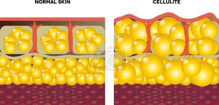 Cellulite and normal skin....