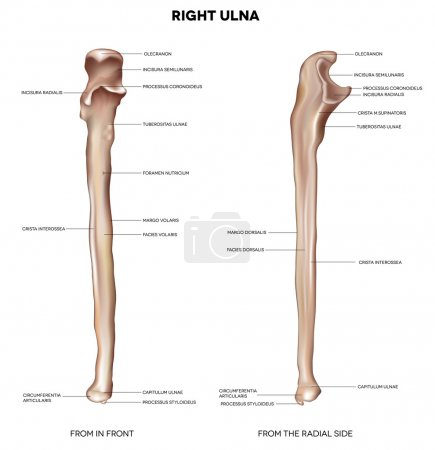 Ulna- from front and radial side