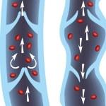 Normal vein and varicose vein illustration. Venous...