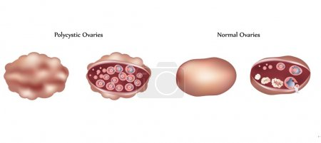 Illustration for Vector Polycystic ovary and normal ovary differences - Royalty Free Image