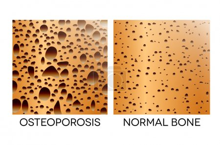 Osteoporosis, unhealthy bone