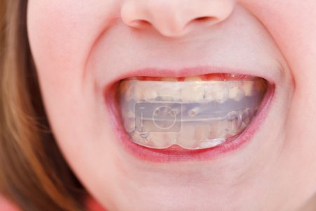 correction of occlusion by orthodontic trainer