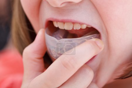 correction of malocclusion by orthodontic trainer