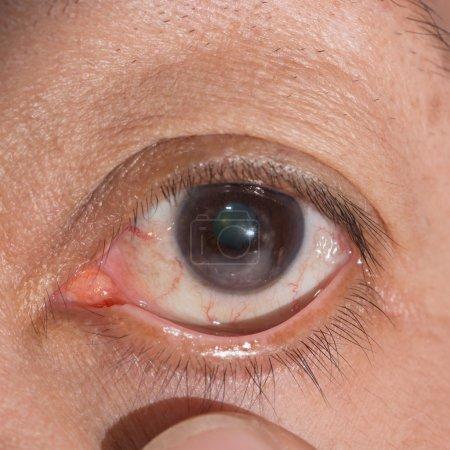 Close up of the corneal scar during eye examinatio...