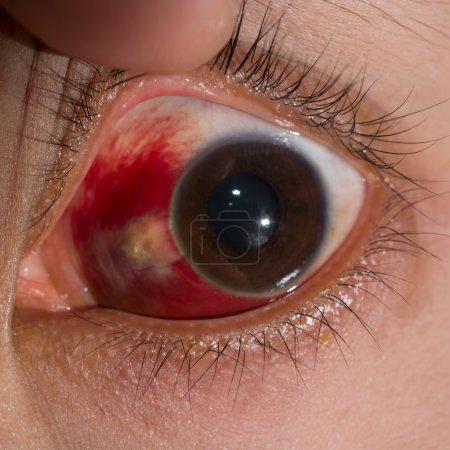 Close up of the large sub conjunctival heamorrhage...