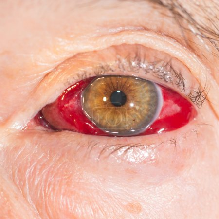 Close up of the large Subconjunctival Hemorrhage d...