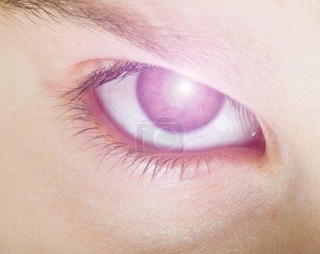Human eye and light
