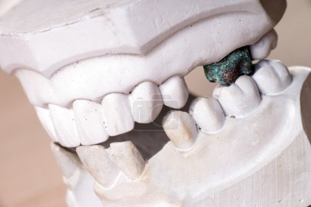 Teeth made of plaster