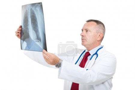 Senior doctor examining a lung radiography