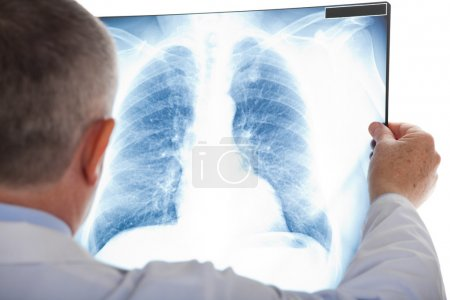 Senior doctor examining a lung radiography