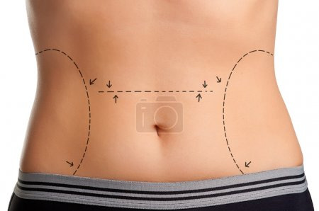 Photo for Tummy marked for plastic surgery - Royalty Free Image