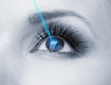 Photo pour Correction laser de la vision. yeux de la femme. - image libre de droit