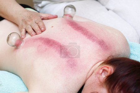 fire cupping treatment to cup sb therapy woman