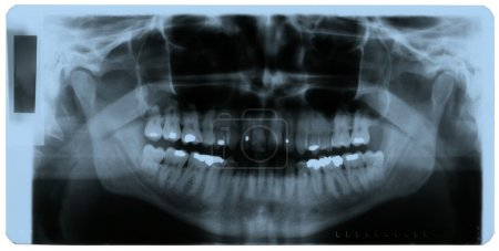 X-ray photo of human teeth