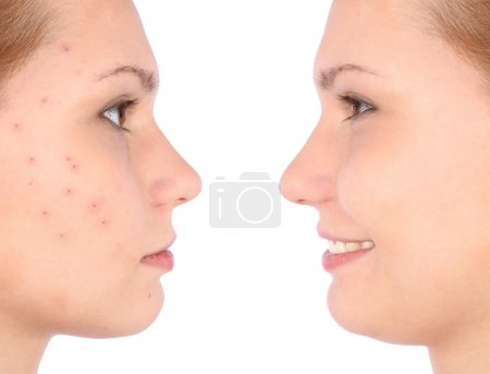 Photo pour Concept de peau claire avec portrait de jeune fille. Avant, après. Isolé sur fond blanc - image libre de droit