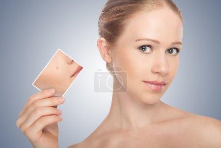 Photo pour Concept soin de la peau. Peau de beauté jeune femme avant et après la procédure sur un fond gris - image libre de droit