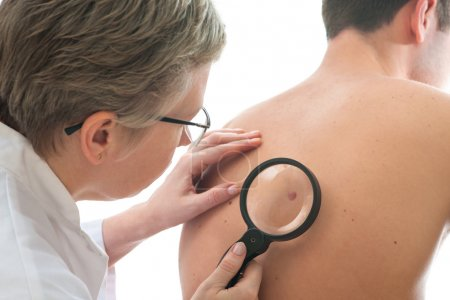 Dermatologist examines a mole of male patient...