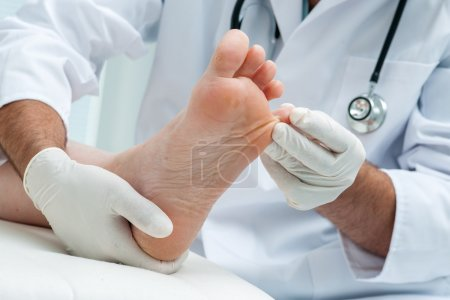 Photo for Doctor dermatologist examines the foot on the presence of athletes foot - Royalty Free Image