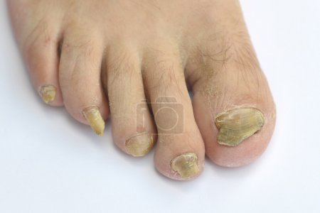 Fungus Infection on Nails