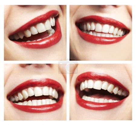 Collage of woman laughing, close up of smile with ...