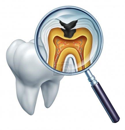 Photo pour Cavité dentaire en gros plan et symbole de cavités montrant une loupe avec une section transversale d'une anatomie dentaire en décomposition due à des bactéries et des acides dans les soins buccodentaires s - image libre de droit
