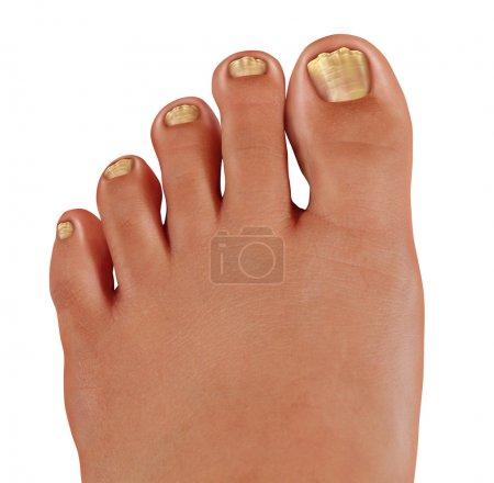 Photo pour Champignon ongles d'orteil fermer avec un pied humain avec des ongles d'orteil infectés comme un symbole de traiter et de diagnostiquer les pieds avec une maladie fongique dans le domaine médical de la podiatrie - image libre de droit