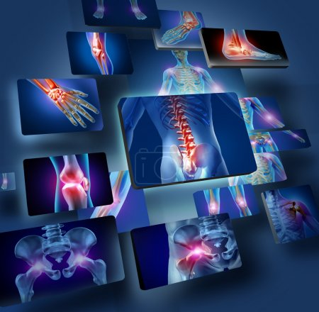 Photo for Human joints concept with the skeleton anatomy of the body with a group of panels of sore joints glowing as a pain and injury or arthritis illness symbol for health care and medical symptoms. - Royalty Free Image