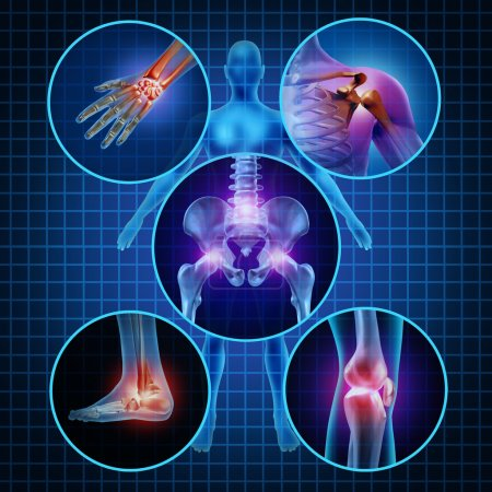 Photo for Painful joints human anatomy concept with the body as a group of circular panels of sore areas as a pain and injury or arthritis illness symbol for health care and medical symptoms due to aging or sports and work injury. - Royalty Free Image