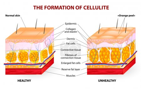 Illustration for The formation of cellulite. Cellulite occurs in most females and rarely in males. Vector diagram. - Royalty Free Image