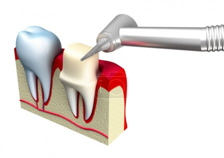 Preparation of the tooth crown for prosthetics. 3d image