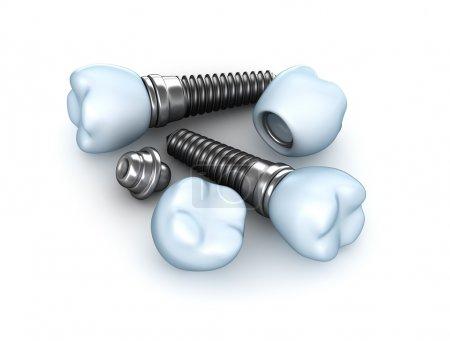 Set of dental implants