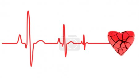 Cardiac arrest, ECG...