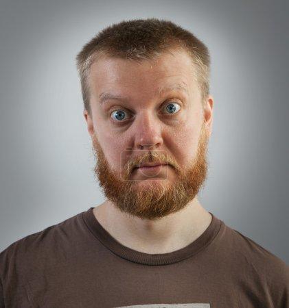 Bearded man with bulging eyes