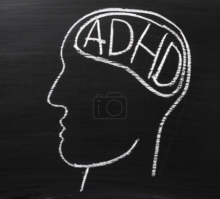 ADHD on the Brain