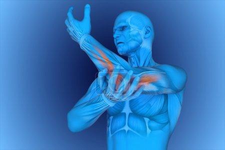 digital illustration Elbow pain
