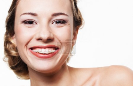 Smile with dental braces